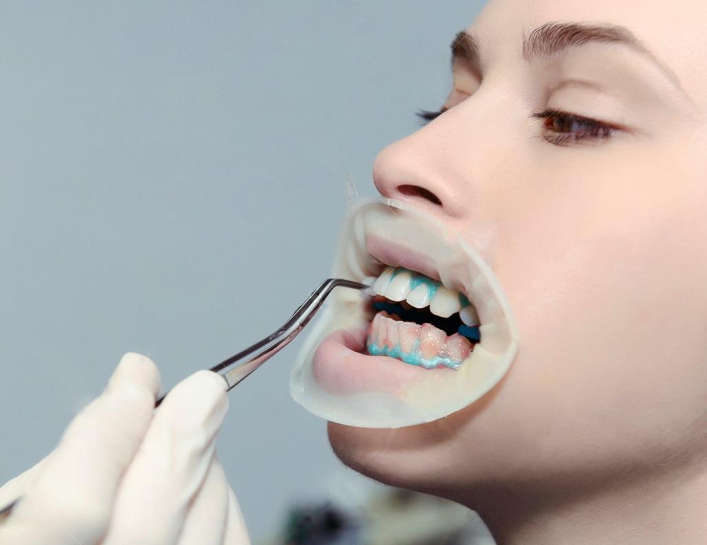 отбеливание зубов zoom 4 отзывы фото
