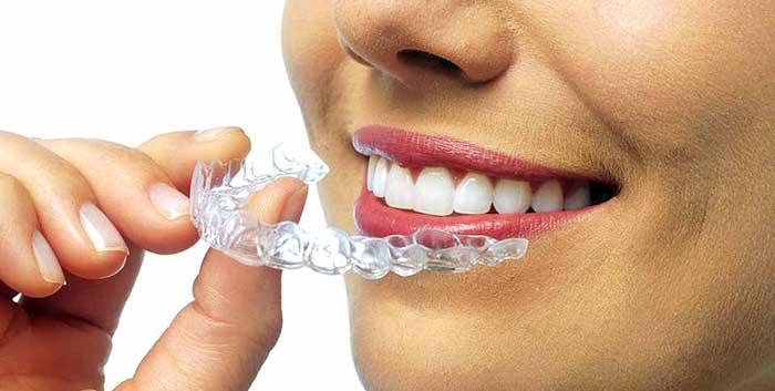 домашнее отбеливание зубов перекисью водорода